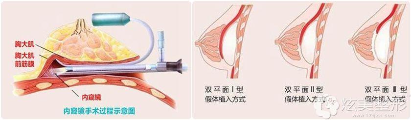 通过JCI认证的海南瑞韩在隆胸方面主推:宝岛荔枝胸技术