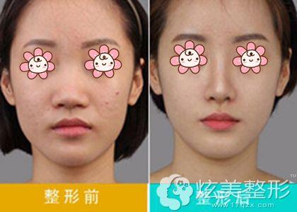 杨永成院长鼻头缩小术真人案例效果对比