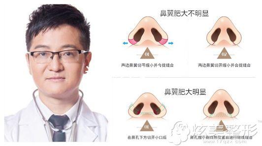 海口瑞韩整形缩鼻头手术原理图以及推荐医生杨永成