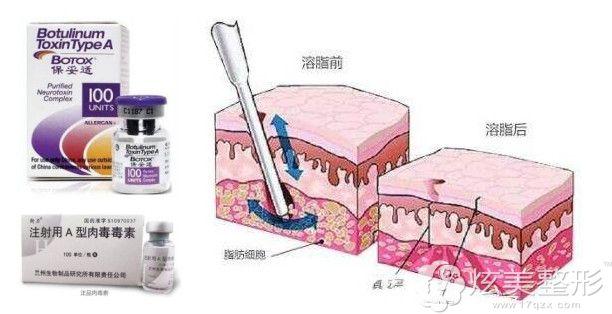 瘦脸除皱和注射溶脂原理