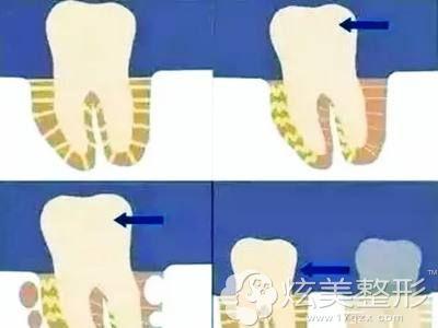 牙齿松动示意图