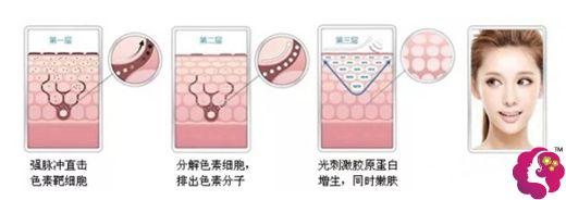 光子嫩肤祛斑手术方式原理图
