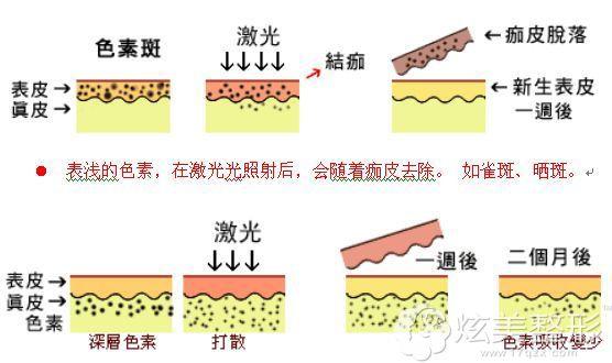激光祛斑手术简易步骤图
