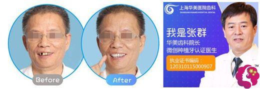 张群院长做即刻种植牙术后效果对比