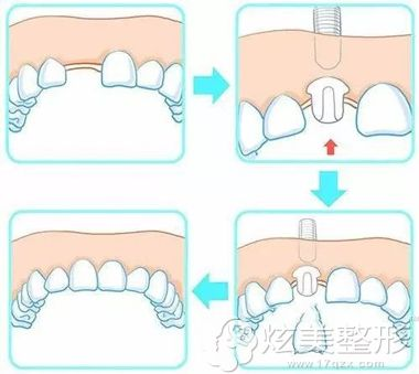 种植牙的手术原理步骤图