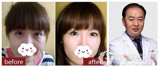 刘德辉主任做超声波去眼袋术后效果对比