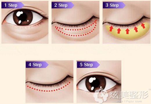 郑州集美美容医院做超声波去眼袋的原理
