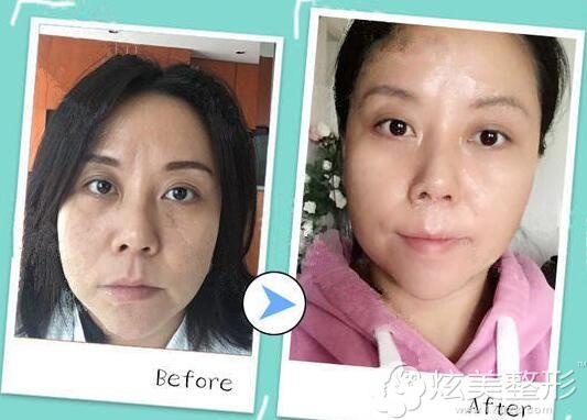 上海艺星医疗美容医院做热玛吉术后恢复案例