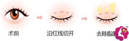 沈阳元辰元生态双眼皮手术方法