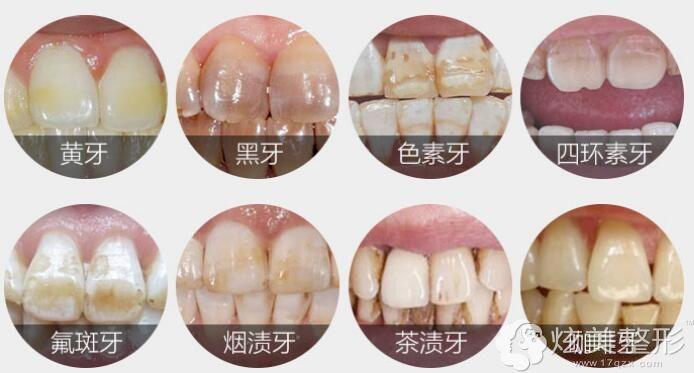 北京康贝佳讲牙黄多个原因