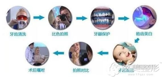 李振芳医生讲好吃美白牙齿流程