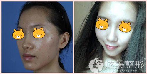 庞英主任做玻尿酸隆鼻术后对比效果图