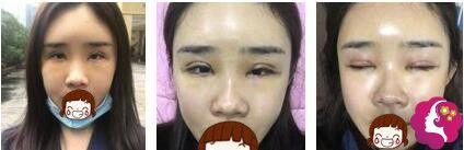 杨明峰专家割双眼皮术后3天肿胀明显