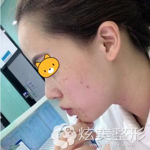 做皮秒激光祛斑术后7天脸部斑点处结痂