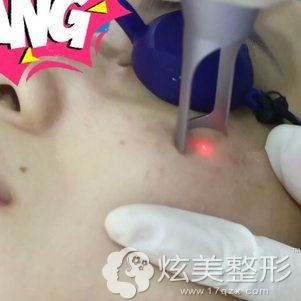 符雨主任做皮秒激光祛斑治疗中