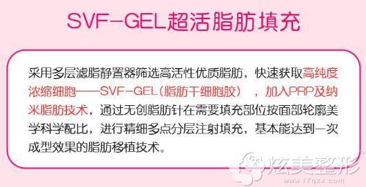 格莱美SVF-GEL超活自体脂肪填充6大核心技术 让你美的刚刚好