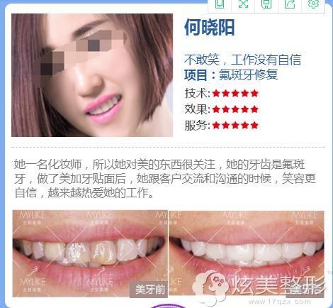 氟斑牙修复