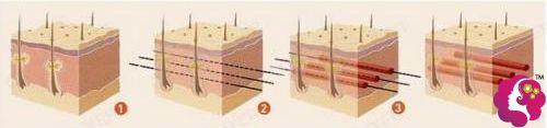 埋线提升手术的原理步骤分解