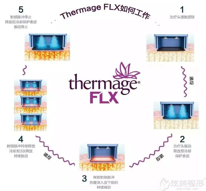 FLX重新改良震动模式,精准计算每一发能量更安全