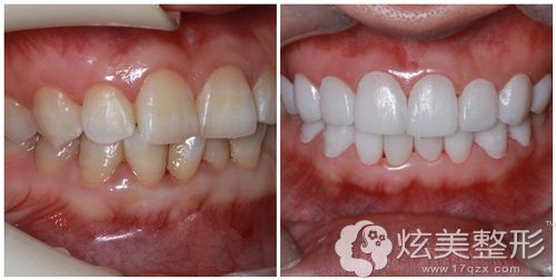 北京圣贝万柳中度氟斑牙术前术后对比图