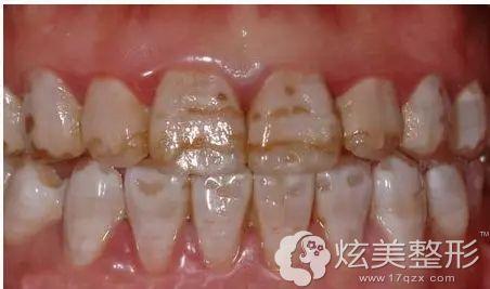 重度氟斑牙的原理及治疗办法