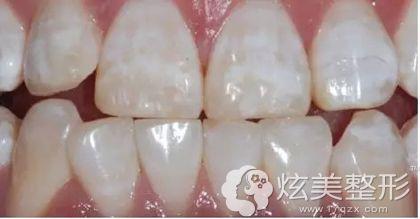 轻度氟斑牙的原理及治疗方案