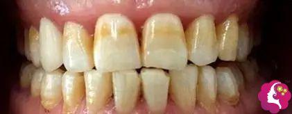 中度氟斑牙的原理及治疗方式