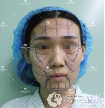 面诊保定蓝山术前面部凹陷明显