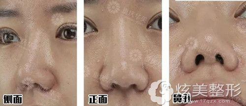 在重庆华美做鼻修复前隆鼻假体晃动、鼻孔大小不一