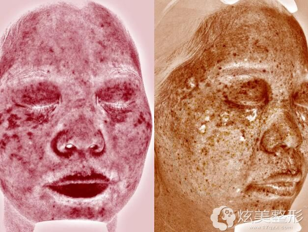 运城光子皮肤检测术后结果公示