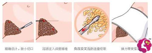 壹加壹做腹部吸脂的技术以及如何避免出现凹凸不平