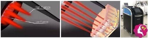 皮秒激光祛斑的原理及使用的设备