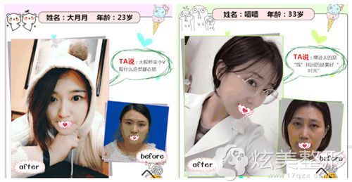 北京惠合嘉美做埋线提升手术打造紧致小V脸