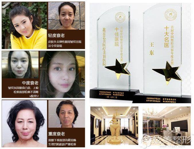 北京艺美软黄金线提升术案例