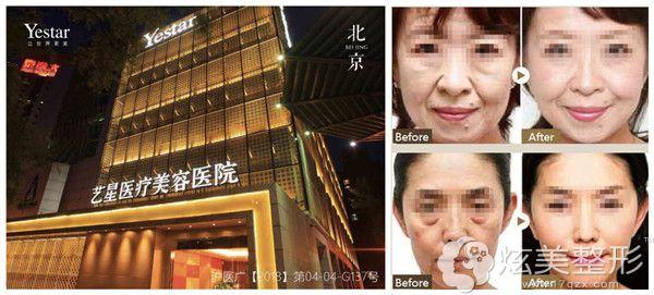 北京艺星弧线蛇形针的线性提拉技术案例