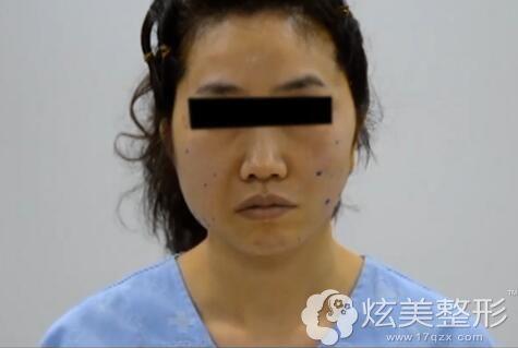 46岁大姐面部松弛下垂只做一侧三重固定提升的效果对比