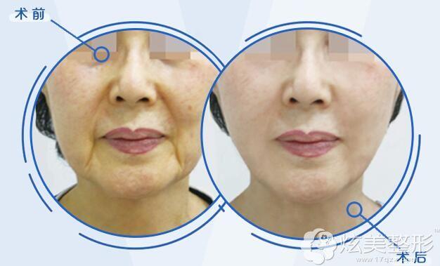 术前法令纹、唇角纹明显,做了重现提拉之后立显年轻,改善老态