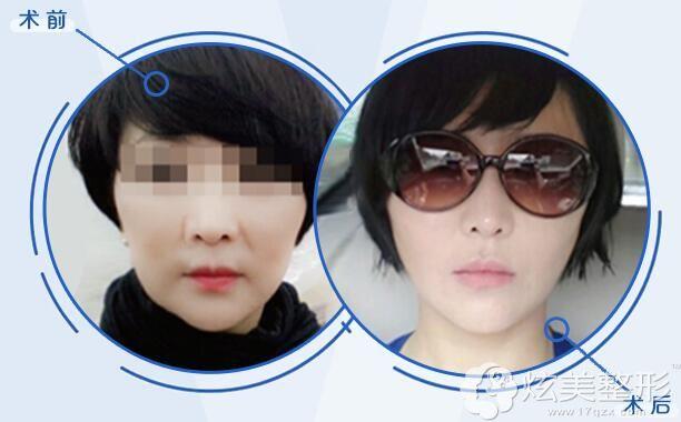 面部松弛下垂,主做下颌缘提升,重塑了V型脸