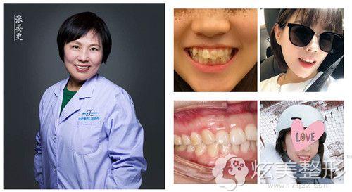 张晏更医生做牙齿矫正案例