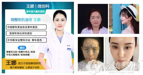 新华美天整形医院推荐专业线雕医生王娜