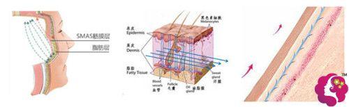 李曾显做面部线雕提升手术过程