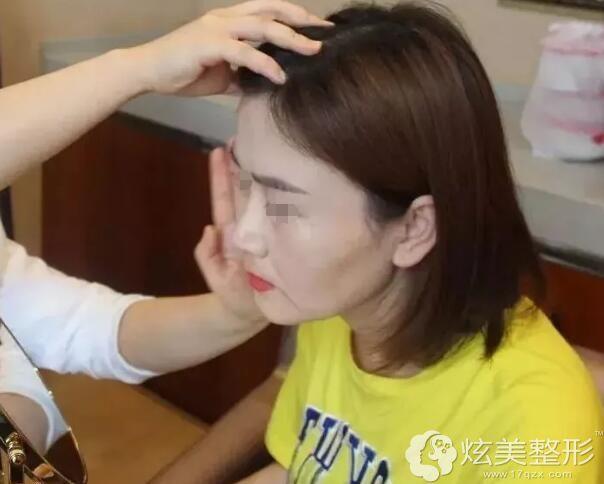 面诊杭州艺星医生设计线雕除皱方案