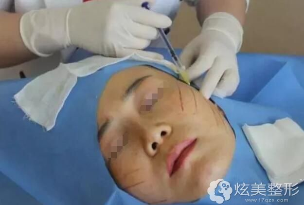 大V线+平滑线埋入皮肤体验中