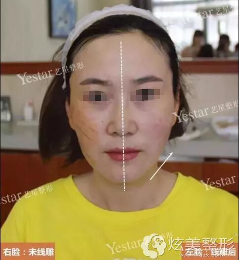 做完线雕一侧脸的对比