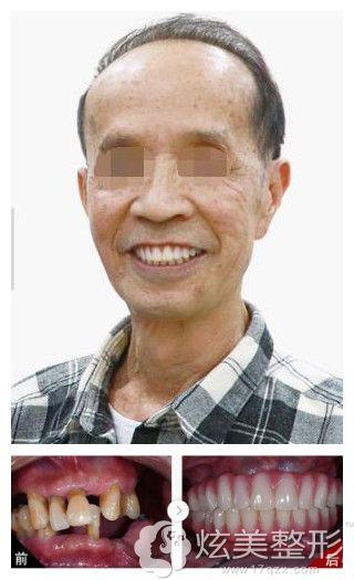 广大口腔种植牙案例
