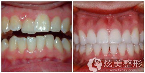 罗医生做全口牙齿矫正术前术后对比图