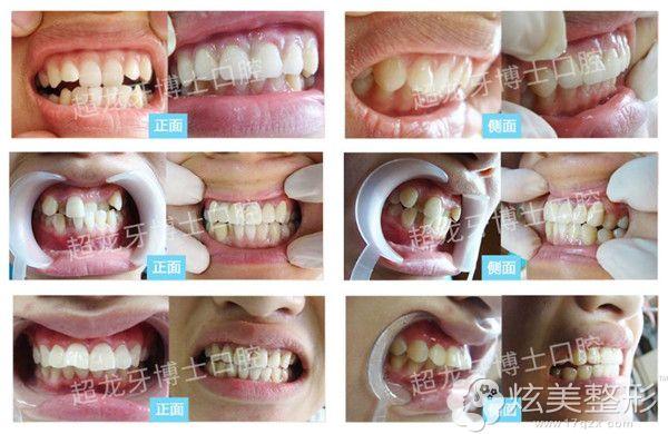 到长春超龙牙博士做正畸术前术后对比效果