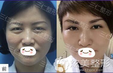 周敏茹眼综合改善眯眯眼手术案例