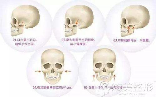 颧骨整形手术的步骤简易图