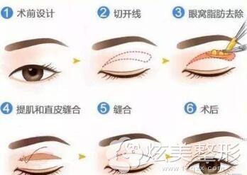 切开双眼皮手术示意图